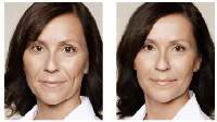 tretmani estetike lica